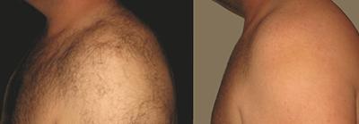 Laser a diodo - prima e dopo